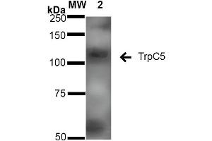 Image no. 2 for anti-Transient Receptor Potential Cation Channel, Subfamily C, Member 5 (TRPC5) (AA 827-845) antibody (FITC) (ABIN2485379)