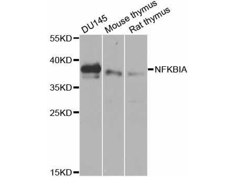 Western Blotting (WB) image for anti-Nuclear Factor of kappa Light Polypeptide Gene Enhancer in B-Cells Inhibitor, alpha (NFKBIA) antibody (ABIN6672616)