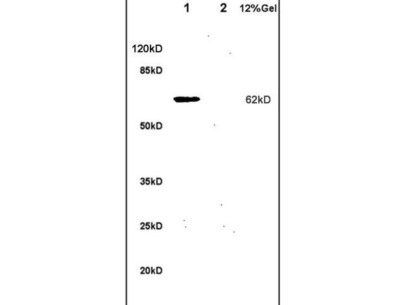 SDS-PAGE (SDS) image for anti-Interleukin 1 Receptor, Type I (IL1R1) (AA 510-545) antibody (ABIN747743)