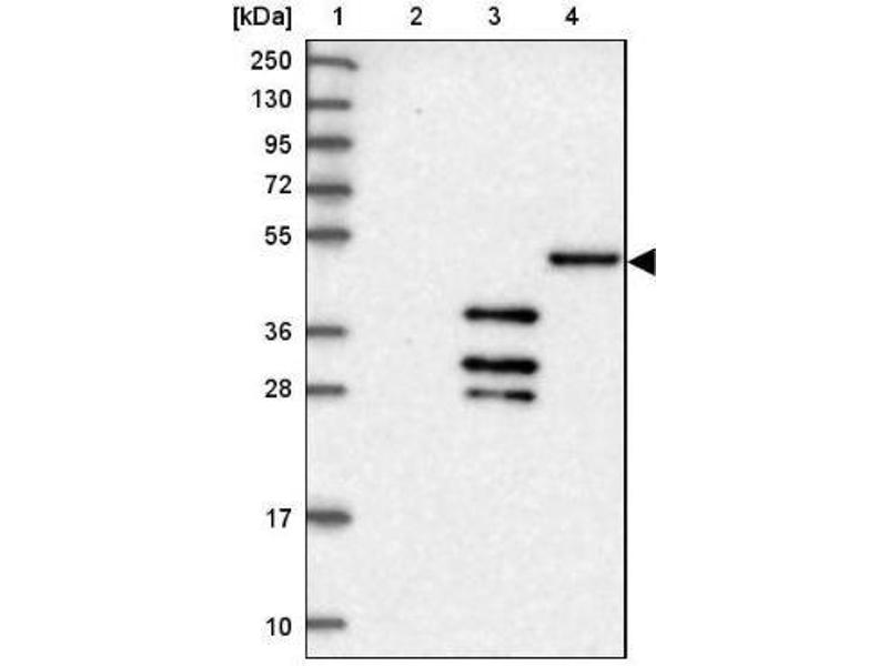 Western Blotting (WB) image for anti-DnaJ (Hsp40) Homolog, Subfamily C, Member 3 (DNAJC3) antibody (ABIN4305626)