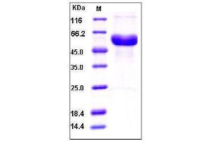 Image no. 1 for alpha-2-HS-Glycoprotein (AHSG) (AA 1-367) (Active) protein (His tag) (ABIN2002561)