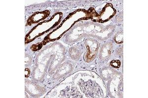 Immunohistochemistry (Paraffin-embedded Sections) (IHC (p)) image for anti-Scinderin (SCIN) antibody (ABIN4352226)