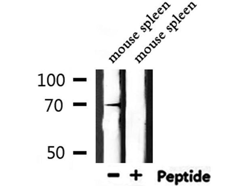 Western Blotting (WB) image for anti-Interleukin-1 Receptor-Associated Kinase 2 (IRAK2) antibody (ABIN6258244)