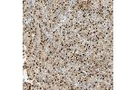 Immunohistochemistry (Paraffin-embedded Sections) (IHC (p)) image for anti-Mitogen-Activated Protein Kinase Kinase Kinase 4 (MAP3K4) antibody (ABIN4333541)