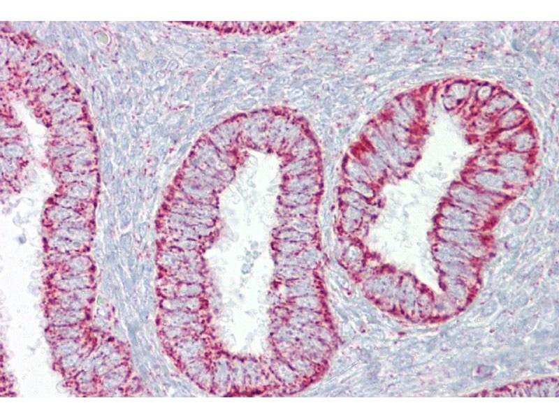 Immunohistochemistry (IHC) image for anti-Platelet-Derived Growth Factor beta Polypeptide (PDGFB) (N-Term) antibody (ABIN2787714)