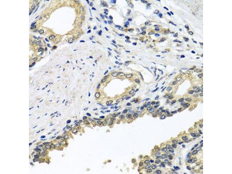 Immunohistochemistry (IHC) image for anti-Syntaxin Binding Protein 2 (STXBP2) antibody (ABIN2737618)