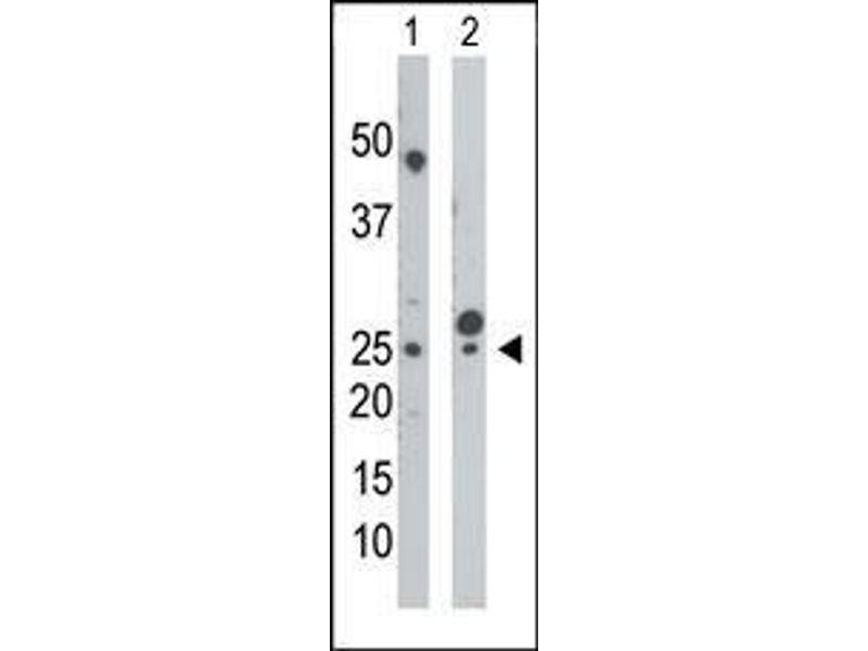Western Blotting (WB) image for anti-Uridine-Cytidine Kinase (UCK) (AA 18-48), (N-Term) antibody (ABIN392730)