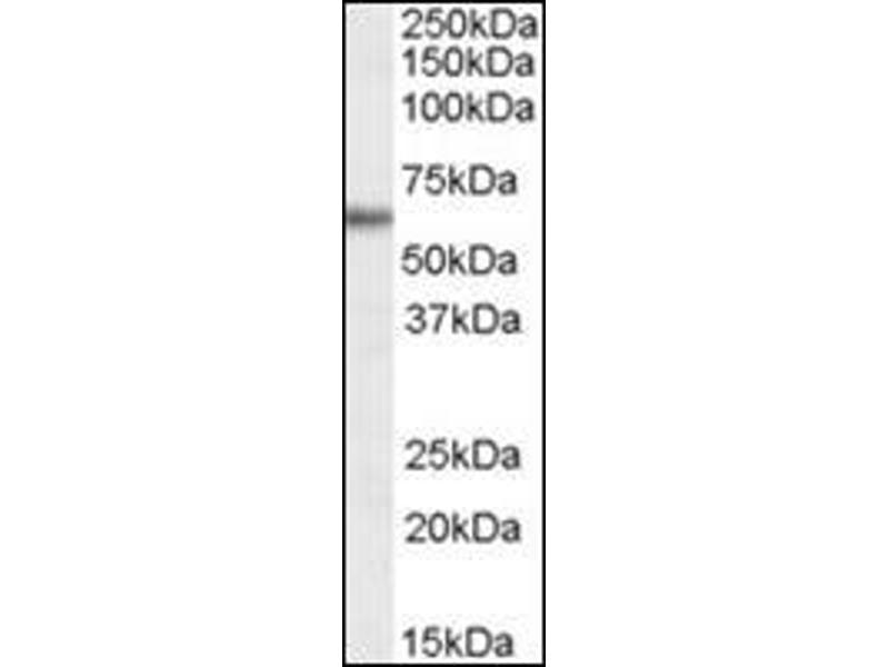 Western Blotting (WB) image for anti-Glucose-6-Phosphate Dehydrogenase (G6PD) (AA 305-318), (Internal Region) antibody (ABIN614946)