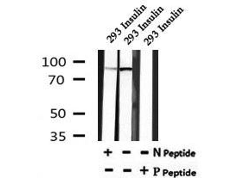 Image no. 2 for anti-Insulin-Like Growth Factor 1 Receptor (IGF1R) (pThr1163) antibody (ABIN6269831)