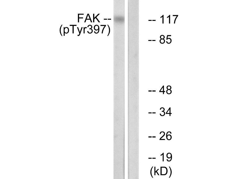 Image no. 2 for anti-PTK2 Protein tyrosine Kinase 2 (PTK2) (pTyr397) antibody (ABIN1576433)
