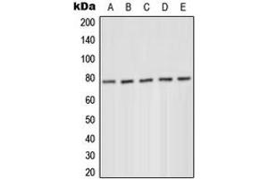 Western Blotting (WB) image for anti-Protein Kinase C, delta (PKCd) (N-Term), (pTyr52) antibody (ABIN2707707)