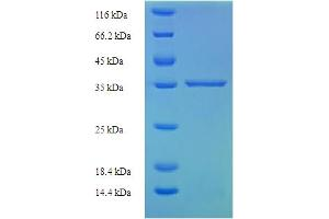 Image no. 1 for Interleukin 29 (IL29) (AA 21-200), (partial) protein (His-SUMO Tag) (ABIN5711509)