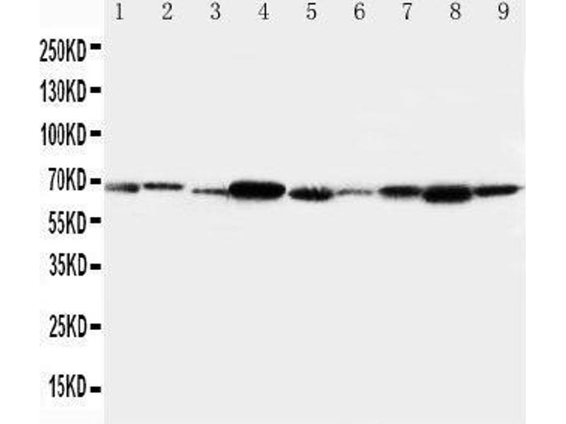 Western Blotting (WB) image for anti-TRAF6 antibody (TNF Receptor-Associated Factor 6) (AA 145-160) (ABIN3044469)