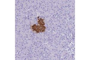 Immunohistochemistry (Paraffin-embedded Sections) (IHC (p)) image for anti-Insulin (INS) antibody (ABIN4326017)
