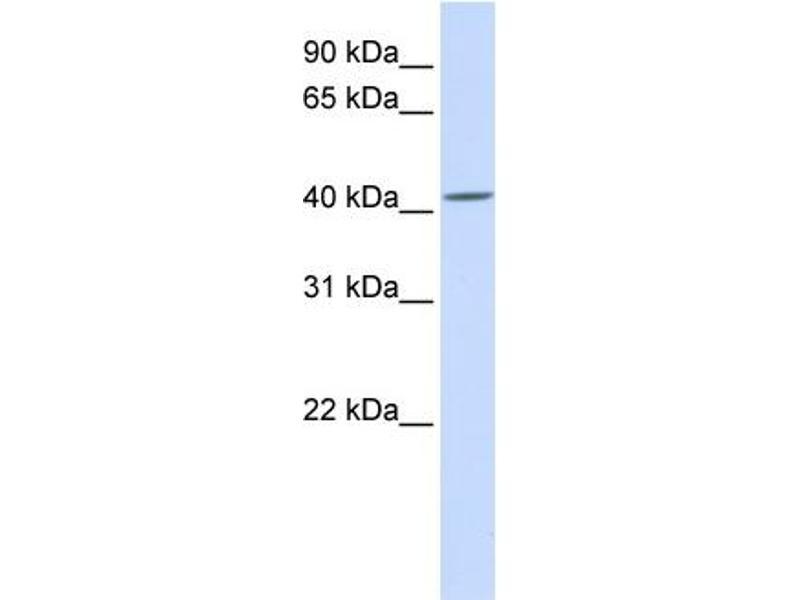 Western Blotting (WB) image for anti-SIL1 Homolog, Endoplasmic Reticulum Chaperone (S. Cerevisiae) (SIL1) (C-Term) antibody (ABIN2782037)