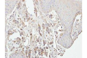 Immunohistochemistry (Paraffin-embedded Sections) (IHC (p)) image for anti-PKC gamma antibody (Protein Kinase C, gamma) (ABIN442501)