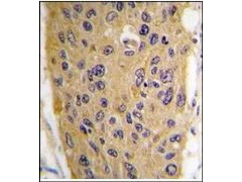 image for anti-WIF1 antibody (WNT Inhibitory Factor 1) (C-Term) (ABIN4620473)