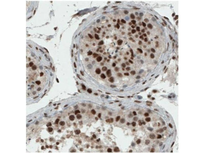 Immunohistochemistry (IHC) image for anti-Excision Repair Cross Complementing Polypeptide-1 (ERCC1) antibody (ABIN4309349)