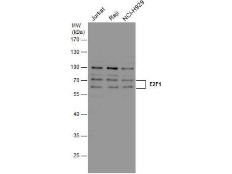 Western Blotting (WB) image for anti-E2F Transcription Factor 1 (E2F1) antibody (ABIN269710)