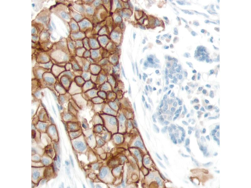 Immunohistochemistry (IHC) image for anti-EPH Receptor A2 antibody (EPHA2) (Internal Region) (ABIN1687673)