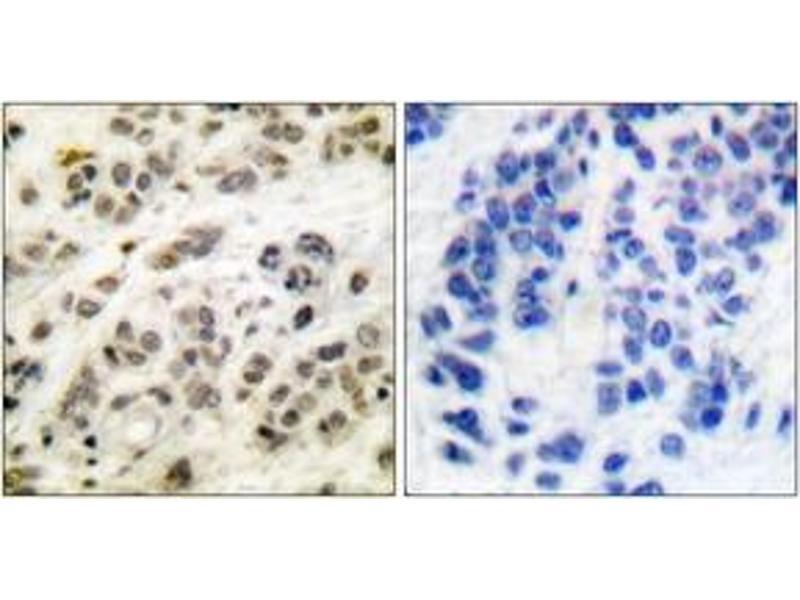 Immunohistochemistry (IHC) image for anti-MYC (AA 31-80) antibody (ABIN1532205)