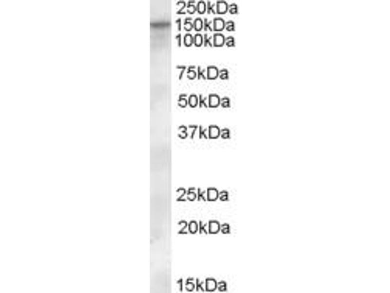 Image no. 2 for anti-Solute Carrier Family 12 (Potassium-Chloride Transporter) Member 4 (SLC12A4) (Internal Region) antibody (ABIN238576)