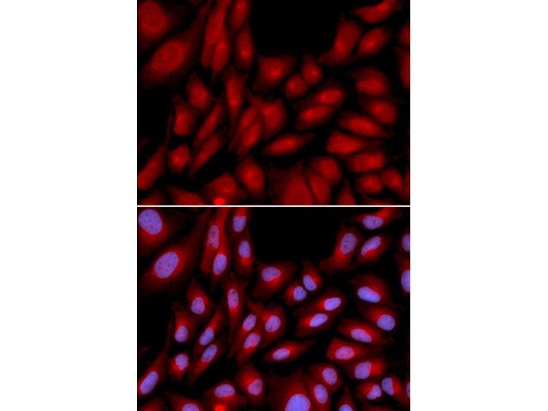Image no. 4 for anti-BCL2-Associated Athanogene (BAG1) antibody (ABIN6567053)