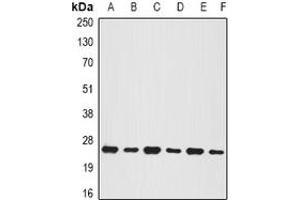 Image no. 1 for anti-BCL2/adenovirus E1B 19kDa Interacting Protein 1 (BNIP1) (full length) antibody (ABIN6043236)