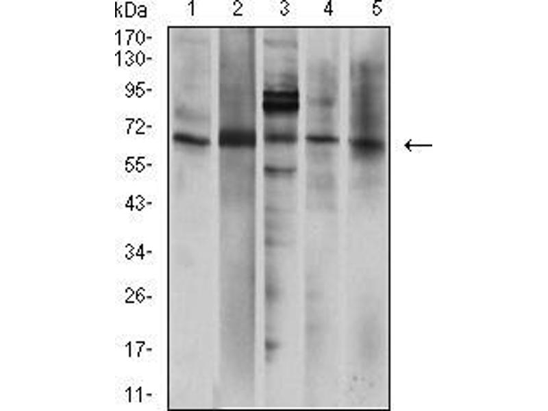 Western Blotting (WB) image for anti-Purinergic Receptor P2X, Ligand-Gated Ion Channel, 7 (P2RX7) (AA 226-452) antibody (ABIN5542663)