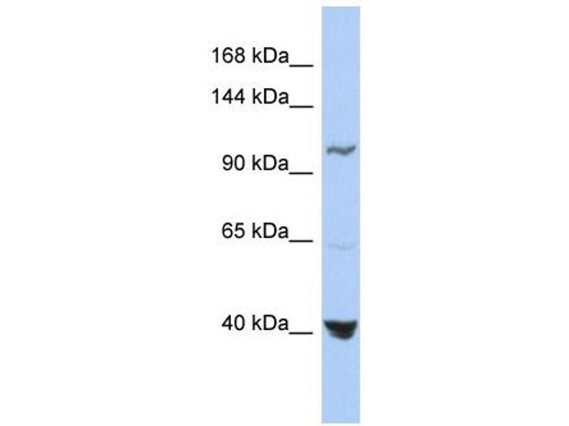 Western Blotting (WB) image for anti-Methylenetetrahydrofolate Dehydrogenase (NADP+ Dependent) 1, Methenyltetrahydrofolate Cyclohydrolase, Formyltetrahydrofolate Synthetase (MTHFD1) (Middle Region) antibody (ABIN2782515)
