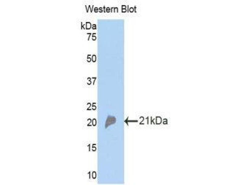 Western Blotting (WB) image for anti-Complement Factor P (CFP) (AA 310-459) antibody (ABIN1173602)