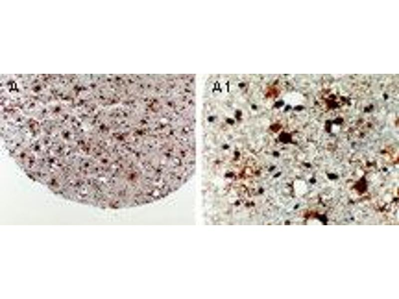 image for anti-Apoptotic Peptidase Activating Factor 1 (APAF1) (AA 264-282) antibody (ABIN957133)