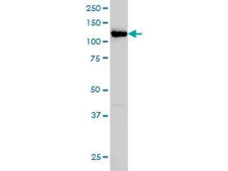 Western Blotting (WB) image for anti-Huntingtin Interacting Protein 1 (HIP1) (AA 928-1037), (partial) antibody (ABIN561263)