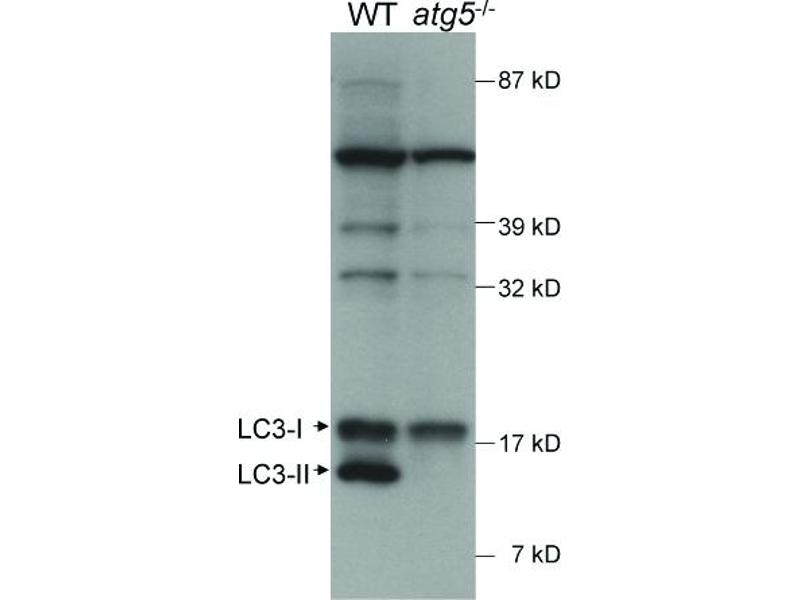 Western Blotting (WB) image for anti-Microtubule-Associated Protein 1 Light Chain 3 beta (MAP1LC3B) (AA 25-121) antibody (Biotin) (ABIN250720)