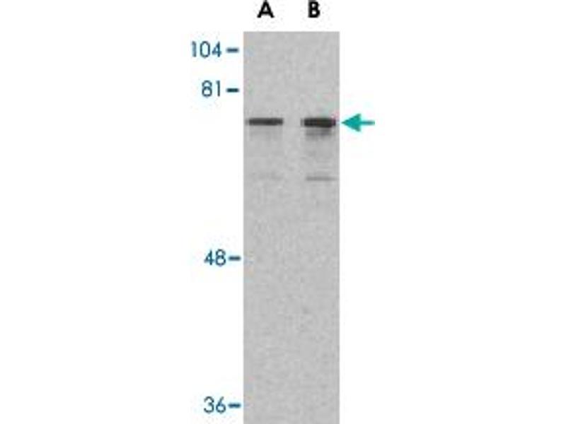 Western Blotting (WB) image for anti-DEAD (Asp-Glu-Ala-Asp) Box Polypeptide 3, X-Linked (DDX3X) (N-Term) antibody (ABIN541517)