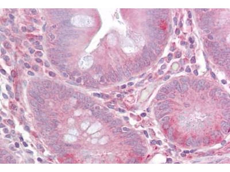 Immunohistochemistry (IHC) image for anti-Toll-Like Receptor 1 (TLR1) (AA 400-450) antibody (ABIN959418)