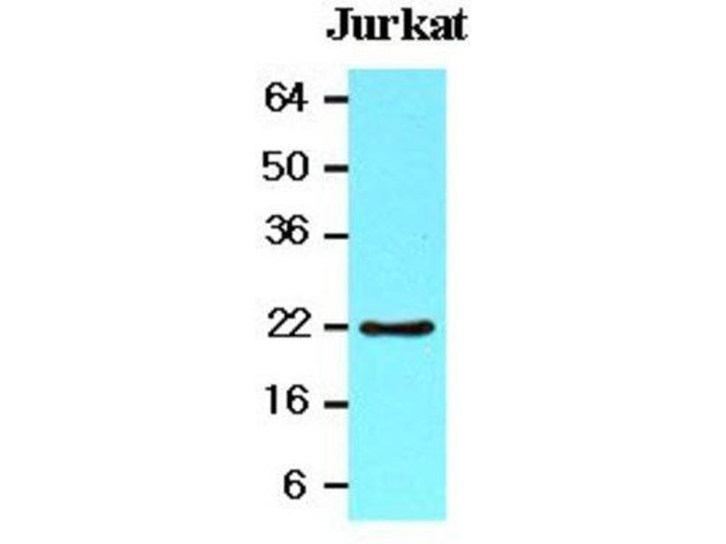 Western Blotting (WB) image for anti-BH3 Interacting Domain Death Agonist (BID) (AA 1-195) antibody (ABIN449668)