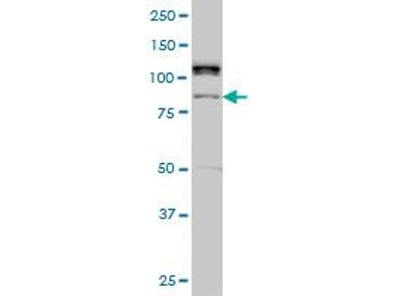 Western Blotting (WB) image for anti-Calcium Responsive Transcription Factor (CARF) (AA 621-718), (partial) antibody (ABIN566385)