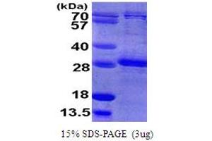 Image no. 1 for Ras Homolog Gene Family, Member B (RHOB) (AA 1-193) protein (His tag) (ABIN667911)