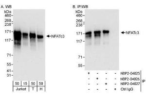 Immunoprecipitation (IP) image for anti-NFATC3 antibody (Nuclear Factor of Activated T-Cells, Cytoplasmic, Calcineurin-Dependent 3) (AA 100-150) (ABIN4339310)