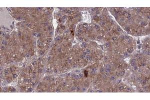 Image no. 2 for anti-Olfactory Receptor, Family 2, Subfamily A, Member 2 (OR2A2) antibody (ABIN6259463)