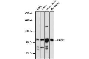 Image no. 1 for anti-Mediator Complex Subunit 25 (MED25) antibody (ABIN6717490)