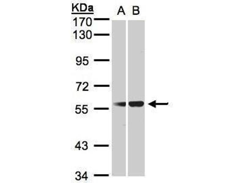Western Blotting (WB) image for anti-SERPING1 antibody (Serpin Peptidase Inhibitor, Clade G (C1 Inhibitor), Member 1) (ABIN2502404)