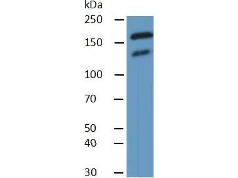 Thrombospondin 1 (THBS1) ELISA Kit (5)