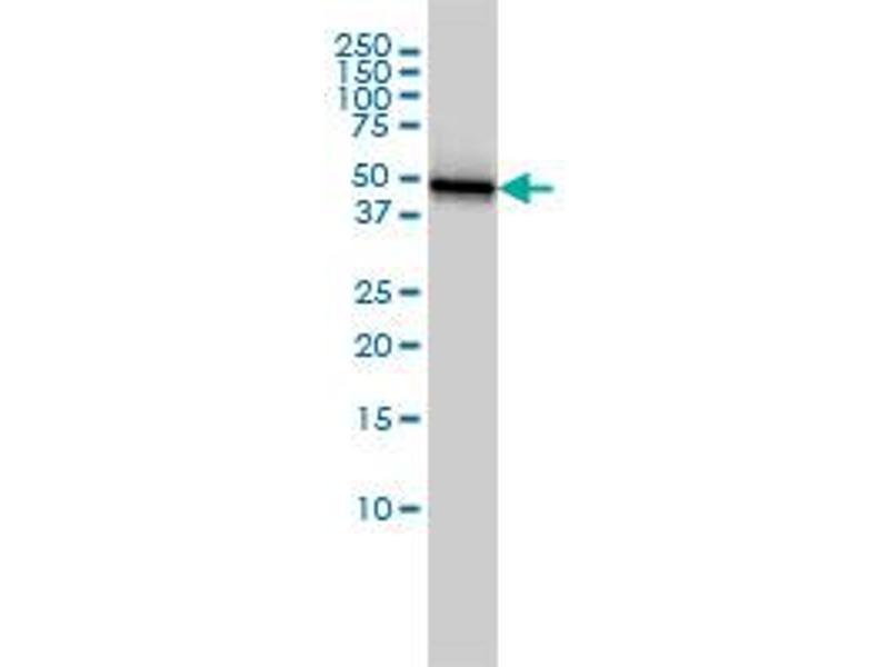 Western Blotting (WB) image for anti-Keratin 18 (KRT18) (AA 1-430), (full length) antibody (ABIN561633)