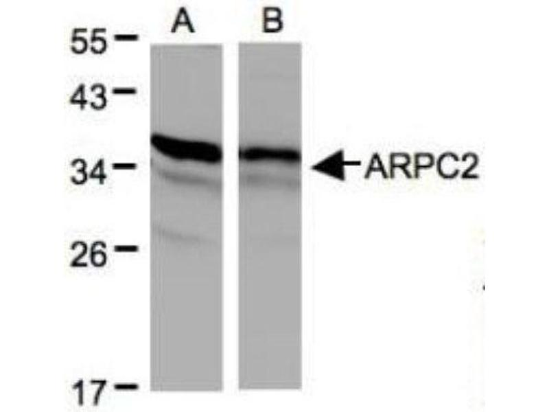 Western Blotting (WB) image for anti-ARPC2 antibody (Actin Related Protein 2/3 Complex, Subunit 2, 34kDa) (Center) (ABIN442268)
