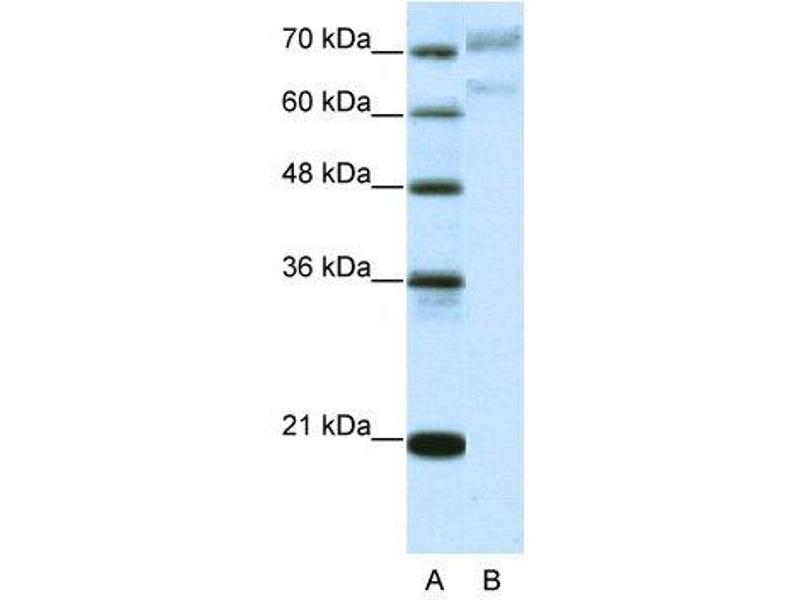 Western Blotting (WB) image for anti-AATF antibody (Apoptosis Antagonizing Transcription Factor) (N-Term) (ABIN183737)