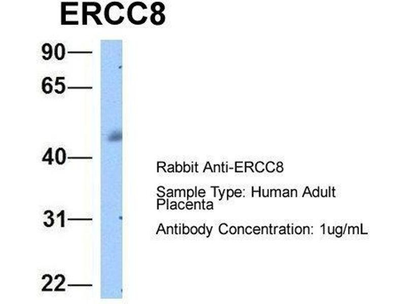 Western Blotting (WB) image for anti-Excision Repair Cross-Complementing Rodent Repair Deficiency, Complementation Group 8 (ERCC8) (C-Term) antibody (ABIN486848)