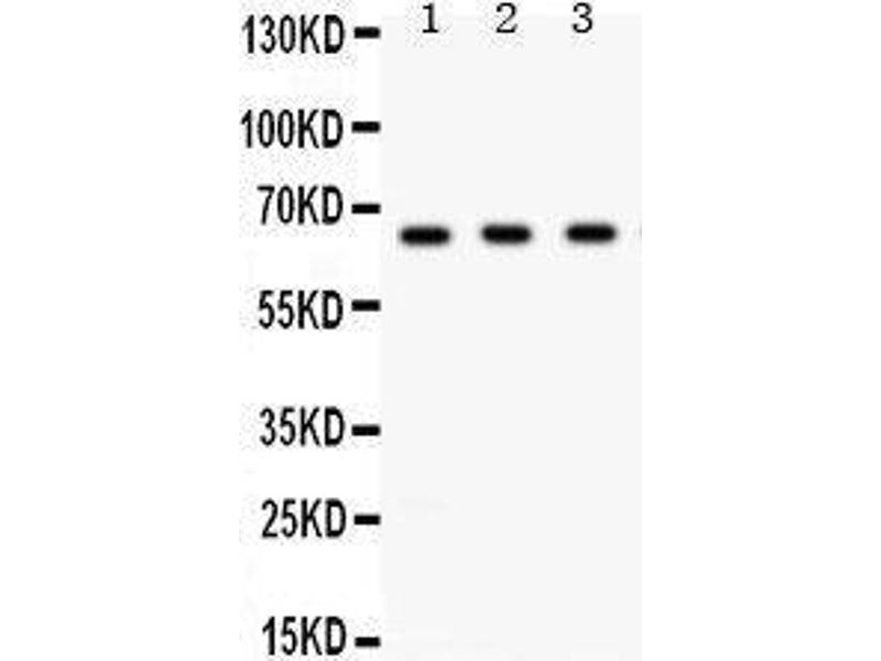 Western Blotting (WB) image for anti-Checkpoint Kinase 2 (CHEK2) (AA 465-498), (C-Term) antibody (ABIN3043811)