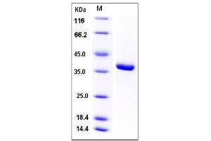 Image no. 1 for Acylphosphatase 1, Erythrocyte (Common) Type (Acyp1) (AA 2-99) protein (GST tag) (ABIN2005269)